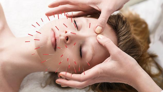 acupuncture nj