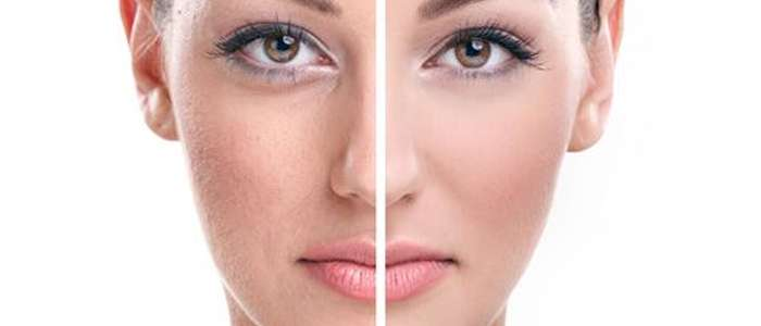 Facial Skin Needs Special Care to Avoid Wrinkles and Dark Spots