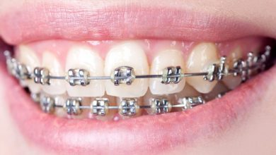 Transform the Indecent Smiles with Dental Braces
