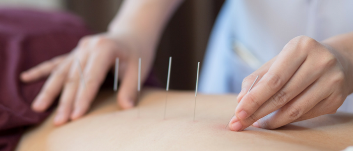 Acupuncture treatments used to treat different medical conditions