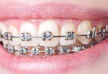 Transform the Indecent Smiles with Dental Braces